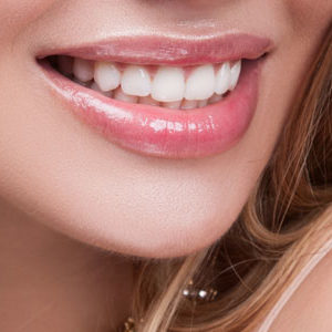 Woman smiling with veneers
